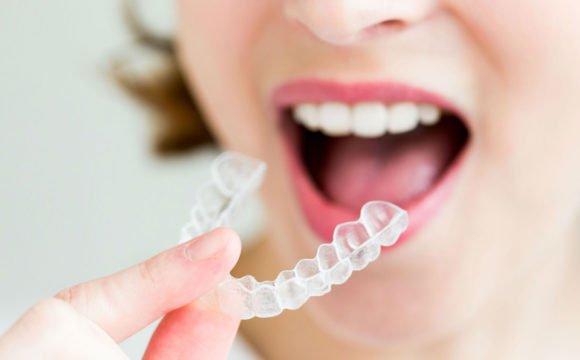 Invisalign: l'alternativa trasparente agli apparecchi per i denti.